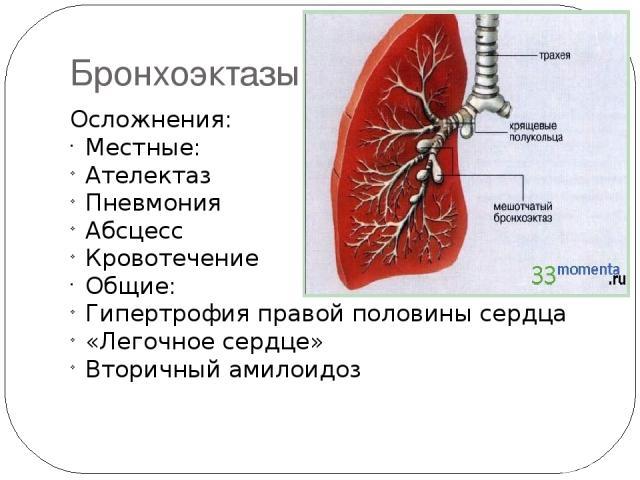 Бронхоэктазы Осложнения: Местные: Ателектаз Пневмония Абсцесс Кровотечение Общие: Гипертрофия правой половины сердца «Легочное сердце» Вторичный амилоидоз