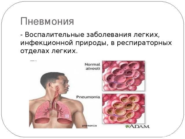 Пневмония - Воспалительные заболевания легких, инфекционной природы, в респираторных отделах легких.