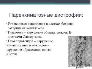Паренхиматозные дистрофии: Углеводные: накопление в клетках белково-сахаридных к