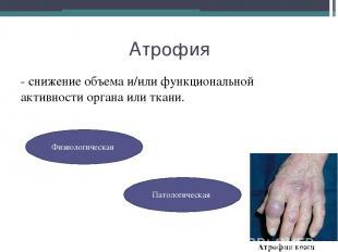 Атрофия - снижение объема и/или функциональной активности органа или ткани. Физи