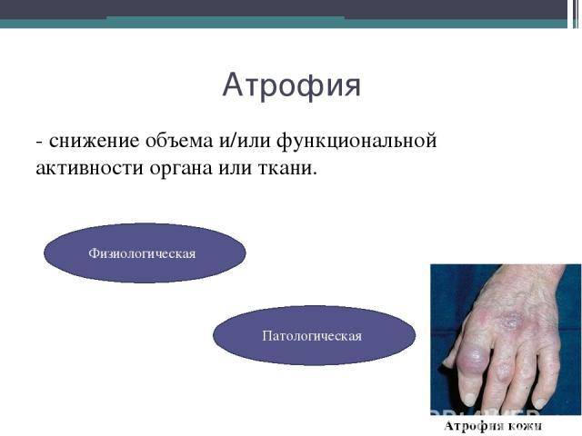 Атрофия - снижение объема и/или функциональной активности органа или ткани. Физиологическая Патологическая Атрофия кожи