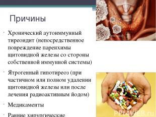 Причины Хронический аутоиммунный тиреоидит (непосредственное повреждение паренхи