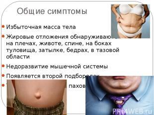Общие симптомы Избыточная масса тела Жировые отложения обнаруживаются на плечах,
