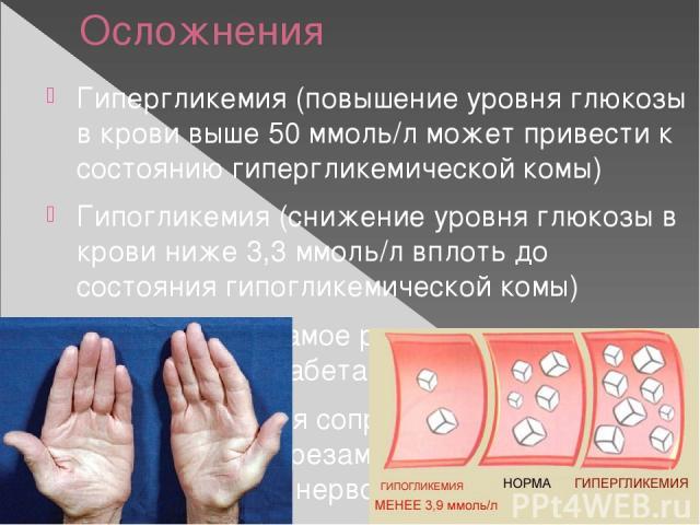 Осложнения Гипергликемия (повышение уровня глюкозы в крови выше 50 ммоль/л может привести к состоянию гипергликемической комы) Гипогликемия (снижение уровня глюкозы в крови ниже 3,3 ммоль/л вплоть до состояния гипогликемической комы) Ангиопатия – са…