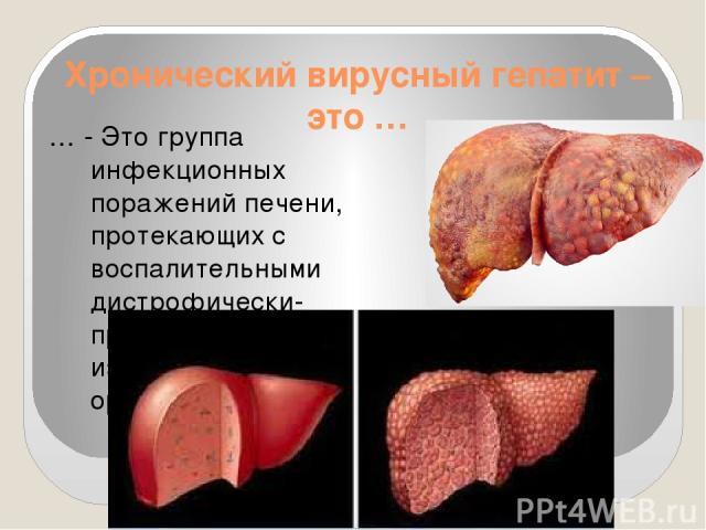 Хронический вирусный гепатит – это … … - Это группа инфекционных поражений печени, протекающих с воспалительными дистрофически-пролиферативными изменениями паренхимы органа.