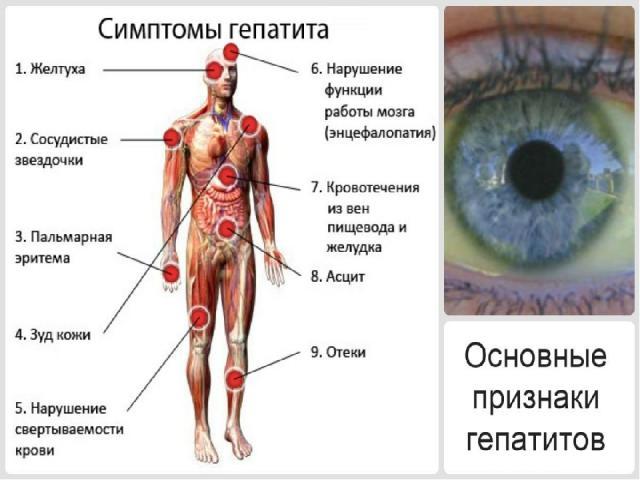 Симптомы ХГ