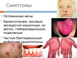 Симптомы Потемнение мочи Кровотечения: носовые, желудочно-кишечные, из десен, ге