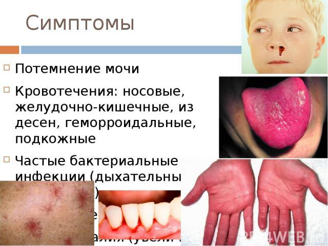Симптомы Потемнение мочи Кровотечения: носовые, желудочно-кишечные, из десен, геморроидальные, подкожные Частые бактериальные инфекции (дыхательных путей и др.) Уплотнение печени Спленомегалия (увеличение селезенки) Диспепсические проявления (тошнот…
