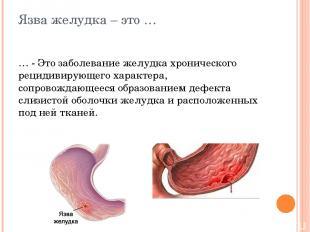 Язва желудка – это … … - Это заболевание желудка хронического рецидивирующего ха
