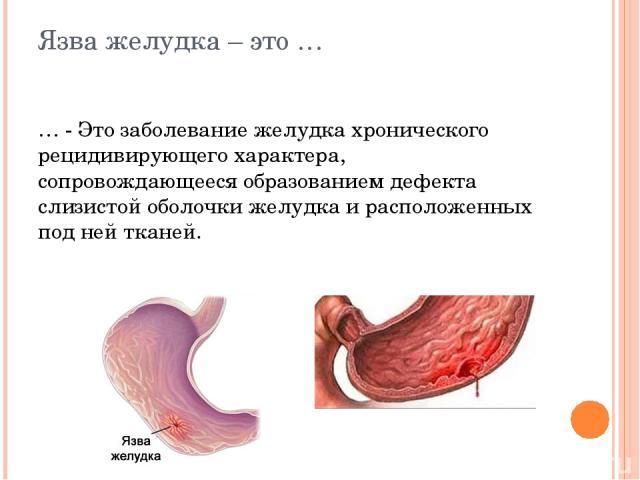 Язва желудка – это … … - Это заболевание желудка хронического рецидивирующего характера, сопровождающееся образованием дефекта слизистой оболочки желудка и расположенных под ней тканей.