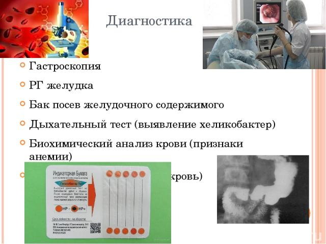 Диагностика Гастроскопия РГ желудка Бак посев желудочного содержимого Дыхательный тест (выявление хеликобактер) Биохимический анализ крови (признаки анемии) Анализ кала (на скрытую кровь)