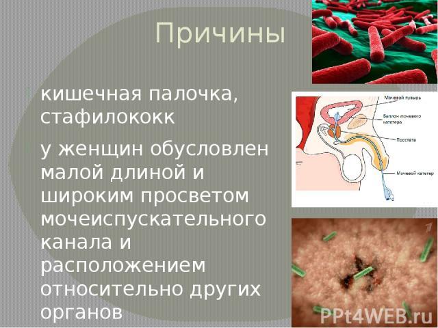 Причины кишечная палочка, стафилококк у женщин обусловлен малой длиной и широким просветом мочеиспускательного канала и расположением относительно других органов при проведении катетеризации мочевого пузыря у мужчин