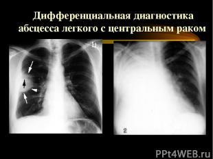 Дифференциальная диагностика абсцесса легкого с центральным раком