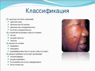 Классификация По характеру местных поражений: эритематозная; эритематозно-буллёз