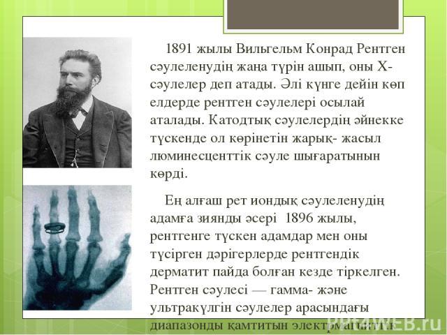 1891 жылы Вильгельм Конрад Рентген сәулеленудің жаңа түрін ашып, оны Х-сәулелер деп атады. Әлі күнге дейін көп елдерде рентген сәулелері осылай аталады. Катодтық сәулелердің әйнекке түскенде ол көрінетін жарық- жасыл люминесценттік сәуле шығаратынын…