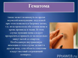 Гематома также может возникнуть во время неумелой венепункции: под кожей при это