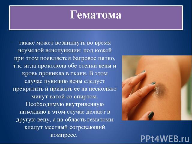 Гематома также может возникнуть во время неумелой венепункции: под кожей при этом появляется багровое пятно, т.к. игла проколола обе стенки вены и кровь проникла в ткани. В этом случае пункцию вены следует прекратить и прижать ее на несколько минут …