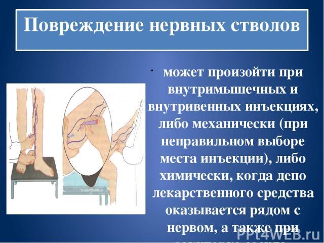 Повреждение нервных стволов может произойти при внутримышечных и внутривенных инъекциях, либо механически (при неправильном выборе места инъекции), либо химически, когда депо лекарственного средства оказывается рядом с нервом, а также при закупорке …