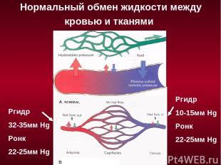 Нормальный обмен жидкости между кровью и тканями Ргидр 32-35мм Hg Ронк 22-25мм H