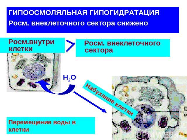 ГИПООСМОЛЯЛЬНАЯ ГИПОГИДРАТАЦИЯ Росм. внеклеточного сектора снижено Росм.внутри клетки Н2О Росм. внеклеточного сектора Набухание клетки Перемещение воды в клетки