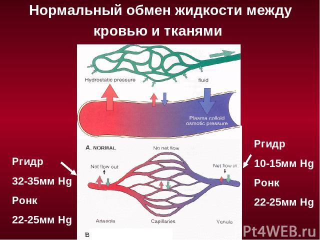 Нормальный обмен жидкости между кровью и тканями Ргидр 32-35мм Hg Ронк 22-25мм Hg Ргидр 10-15мм Hg Ронк 22-25мм Hg