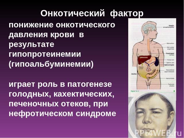 Онкотический фактор понижение онкотического давления крови в результате гипопротеинемии (гипоальбуминемии) играет роль в патогенезе голодных, кахектических, печеночных отеков, при нефротическом синдроме