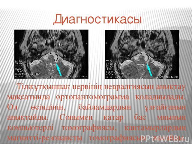 Диагностикасы Тілжұтқыншақ нервінің невралгиясын анықтау мақсатында ортопантомограмма қоладнылады. Ол өсіндінің, байламдардың ұлғайғанын анықтайды. Сонымен қатар бас миының компьютерлі томографиясы, қантамырлардың магнитті-резонансты томографиясын ж…