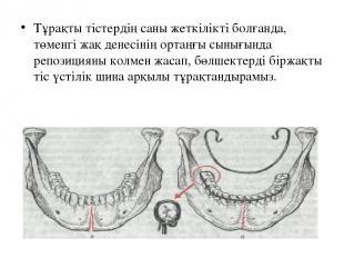 Тұрақты тістердің саны жеткілікті болғанда, төменгі жақ денесінің ортаңғы сынығы