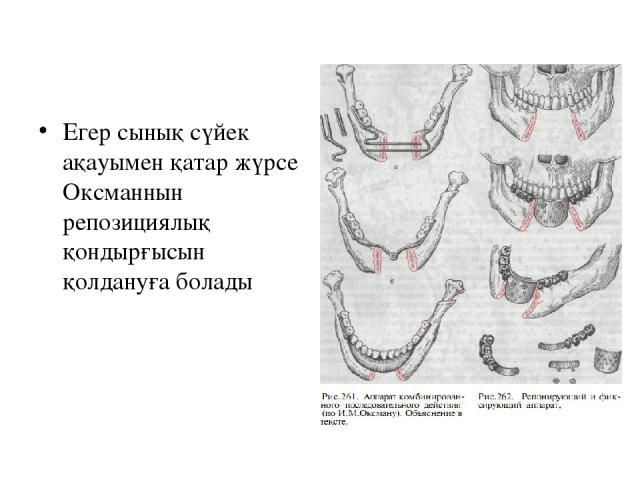 Егер сынық сүйек ақауымен қатар жүрсе Оксманнын репозициялық қондырғысын қолдануға болады