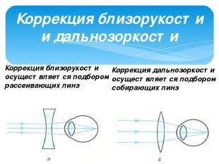 Коррекция близорукости и дальнозоркости Коррекция близорукости осуществляется по