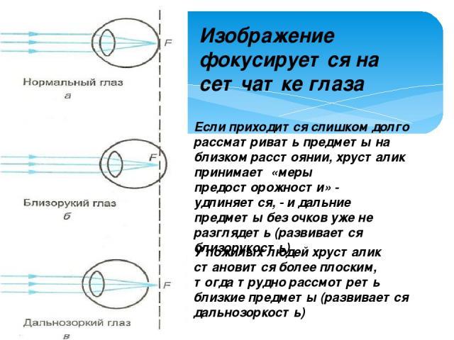 Изображение фокусируется на сетчатке глаза Если приходится слишком долго рассматривать предметы на близком расстоянии, хрусталик принимает «меры предосторожности» - удлиняется, - и дальние предметы без очков уже не разглядеть (развивается близорукос…