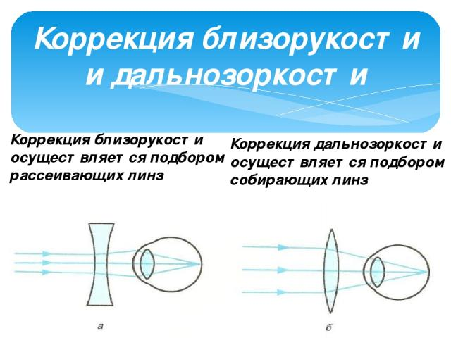 Коррекция близорукости и дальнозоркости Коррекция близорукости осуществляется подбором рассеивающих линз Коррекция дальнозоркости осуществляется подбором собирающих линз