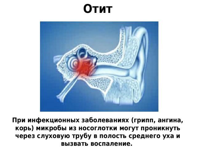Отит При инфекционных заболеваниях (грипп, ангина, корь) микробы из носоглотки могут проникнуть через слуховую трубу в полость среднего уха и вызвать воспаление.