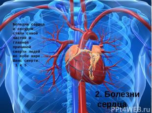 2. Болезни сердца Болезни сердца и сосудов стали самой частой и главной причиной