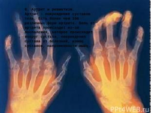 6. Артрит и ревматизм. Артрит - повреждение суставов тела. Есть более чем 100 ра