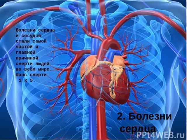 2. Болезни сердца Болезни сердца и сосудов стали самой частой и главной причиной смерти людей во всём мире. Шанс смерти: 1 к 5.