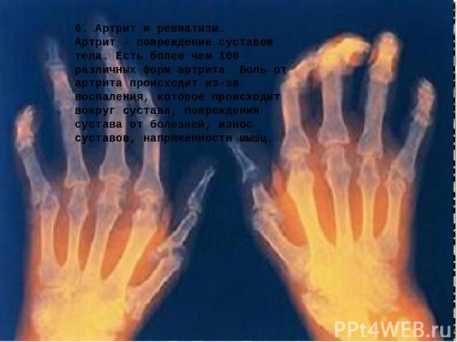 6. Артрит и ревматизм. Артрит - повреждение суставов тела. Есть более чем 100 различных форм артрита. Боль от артрита происходит из-за воспаления, которое происходит вокруг сустава, повреждения сустава от болезней, износ суставов, напряженности мышц.